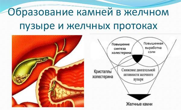 mehanizm-obrazovaniya-kamnej